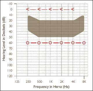 Overcoming Conductive/Mixed Hearing Losses and Single-Sided Deafness with Bone-Anchored Hearing Devices