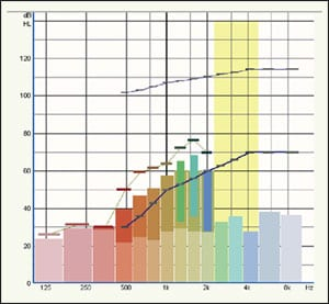 12 Lessons Learned About Linear Frequency Transposition