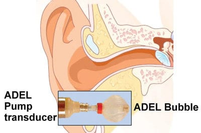 A Voice-activated, Inflatable, Self-regulating Balloon Ear Coupler