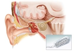 FDA Approves Clinical Trial of Auditory Brainstem Implant Procedure for US Children