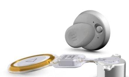 MED-EL Introduces Bonebridge Active Bone Conduction Implant System
