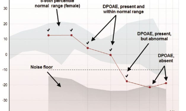 An Overview of OAEs and Normative Data for DPOAEs