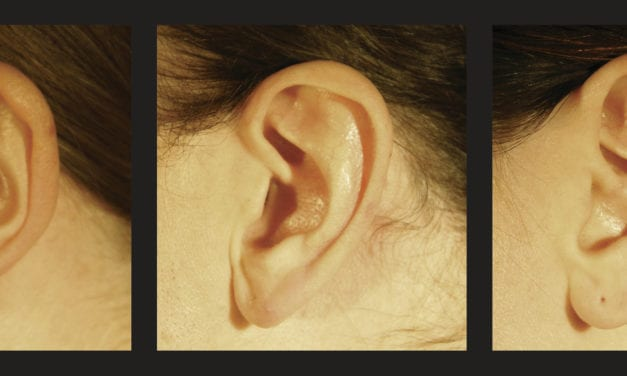Why Auditory Pitch and Spatial Elevation Get High Together: Did Shape of Ear Evolved to Match Natural Acoustics?