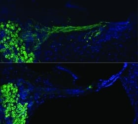 Cochlear Implant Used in Gene Therapy to Regrow Auditory Nerves