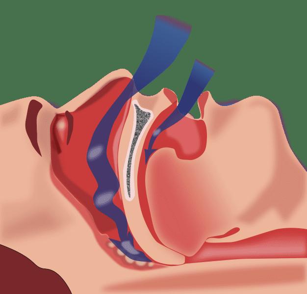 Sleep Apnea Tied to Hearing Loss in Large Study