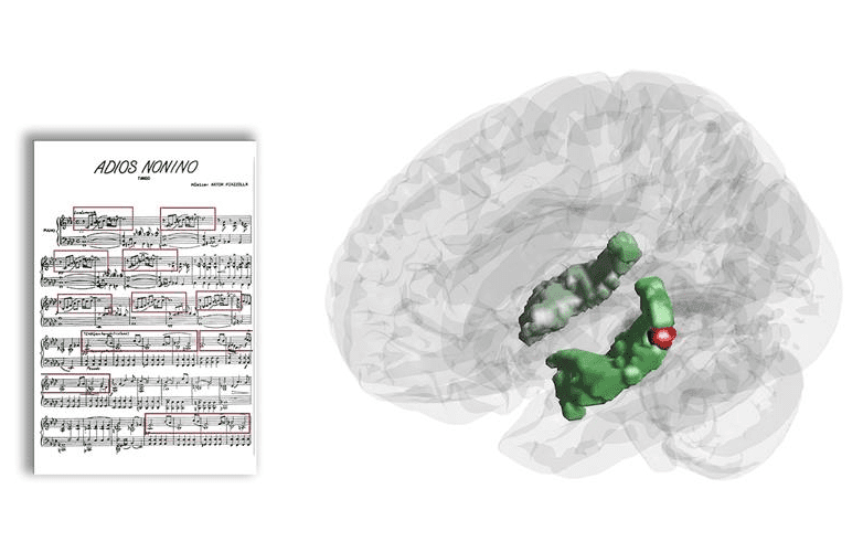 Hippocampal Activity While Listening to Music Shows Memory Activity