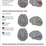 Kids with Autism, Sensory Processing Disorders Show Brain Wiring Differences