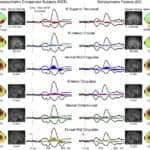 EEG Tests May Help Retrain Schizophrenia Patients' Auditory Brain Circuits