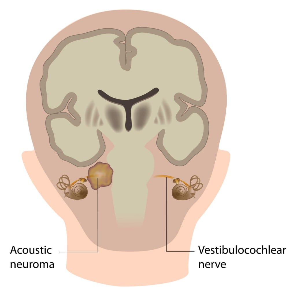 Acoustic Neuroma Diagram