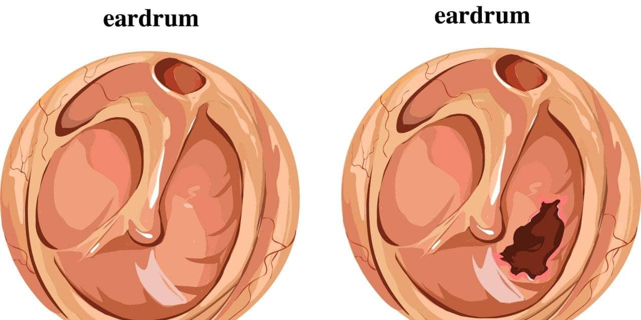 How Scientists Replicate Human Eardrum