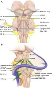 Anatomical diagram for ABI placement