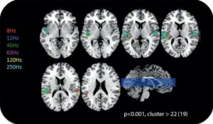 Inaudible sounds can activate the auditory cortex.