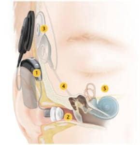 Hybrid cochlear implant