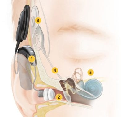 Hybrid Cochlear Implants Help Those with High-Frequency Hearing Loss