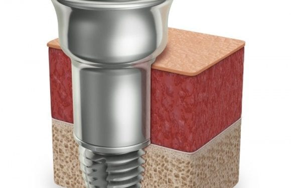 Oticon Medical Receives FDA Clearance to Market New Ponto Abutment Extension