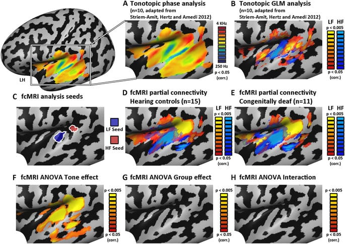 Auditory Cortex mapping
