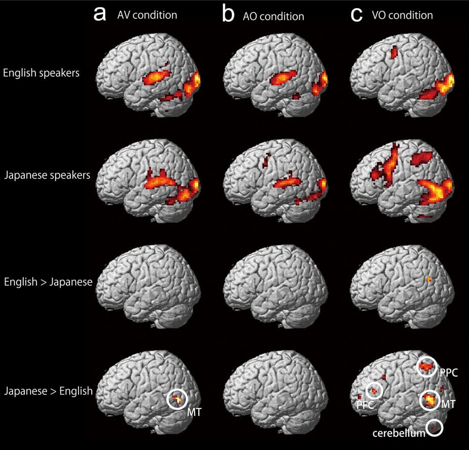 Neuroimaging from Japanese study