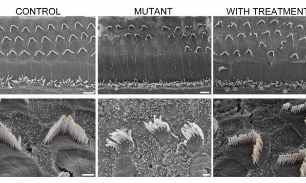 Two Studies Detail Improved Gene Therapy for Hearing Restoration in Mice