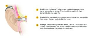 Figure 1. Schematic of the Earlens Light-Driven Hearing Aid.