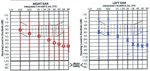 Figure 1. Mean audiogram of subjects in study with range markers for both ears.