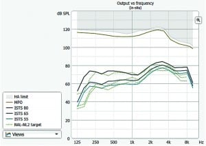 Figure 4. Example of a NAL-NL2 fitting in Widex Compass GPS. The Output vs. frequency graph display the NAL-NL2 target (green dotted curves) together with the estimated aided responses (solid curves) for the ISTS signal presented at 55, 65, and 80 dB SPL input level (free field).