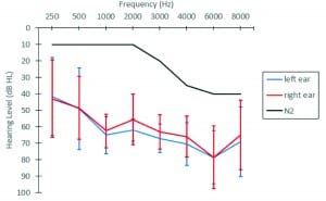 Figure 1. The black line shows an N2 hearing loss11 which was the simulated hearing loss for the normal hearing group. Blue and red lines reflect the mean audiogram (±1 SD) for left and right ears, respectively, for the hearing-impaired group.