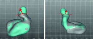 Figure 7a-b. Alignment and comparison of ear impressions taken with a standard otoblock (grey) and EVOB (light blue).  These two examples illustrate how the extra information provided by the EVOB enable more accurate placement of the sound bore following the path towards the ear drum.