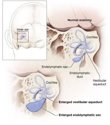 Study Reveals Underlying Cause of Enlarged Vestibular Aqueduct (EVA)
