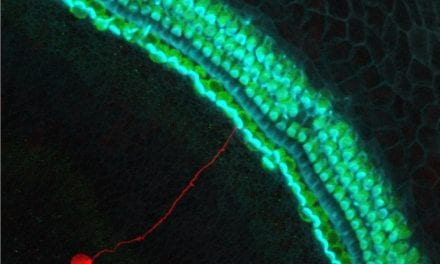 Chromatin May Regulate Uncontrolled Stem Cell Proliferation During Auditory Neuron Conversion