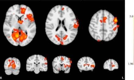 Neurofeedback May Reduce Severity of Tinnitus, Study Shows