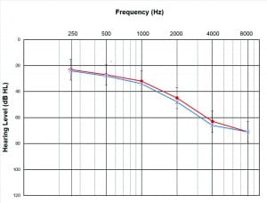 Figure 1. Average hearing level thresholds for right (red) and left (blue) ears of all participants. Error bars show one standard deviation for the right ears. Standard deviation for the left ears was nearly identical and omitted here for readability of the graph.
