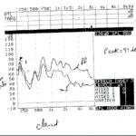 Real-Ear Measurement is Not Just for Verification