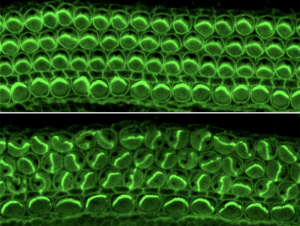 Inner-ear filaments bundled, facing the same direction (top image). Bundles without the Daple protein that appear scrambled (bottom image).