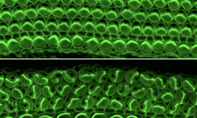 Researchers Identify Protein That May Influence Shape of Ear's Sensory Hairs