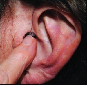 Figure 8. The patient can place their fingernail at the bottom/front of the tubing placement and apply appropriate pressure to direct the receiver into the ear canal for full, secure insertion.
