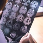 Researchers Find Link Between Alzheimer's Disease and Disrupted Sleep