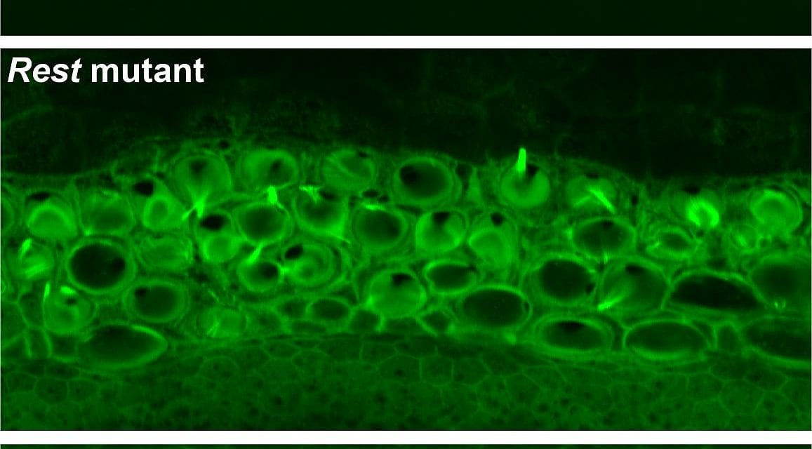 Small-Molecule Drug May Partially Restore Hearing in Mice with Deaf Gene Mutation