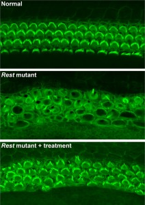 Top: Rows of healthy sensory hair cells in the mouse inner ear with green stereocilia arcs. Middle: In Rest mutant mice, hair cells are disorganized, and stereocilia barely visible. Bottom: In Rest mutant mice treated with HDAC inhibitors, organization and structure of hair cells is partially restored.Yoko Nakano, Carver College of Medicine, University of Iowa, Originally published in Cell.