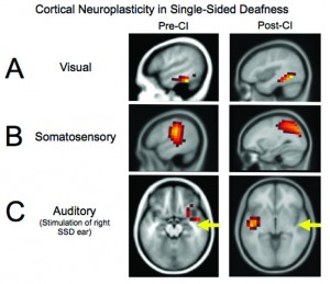Figures 3a-c. Cortical visual, somatosensory, and auditory neuroplasticity in a pediatric case of single-sided deafness before and after cochlear implantation. Before cochlear implantation, the auditory cortex is recruited for visual processing (Panel A) and somatosensory processing (Panel B), suggestive of cross-modal reorganization. Post-implantation, complete or partial reduction in auditory cortex recruitment for visual and somatosensory processing is observed. Before cochlear implantation, auditory stimulation results in abnormal (eg, ipsilateral) activation of the auditory cortex (Panel C), as well as the additional recruitment of frontal and prefrontal cortex—indicative of effortful listening. Post-implantation, a restoration of more typical (eg, contralateral) auditory cortical activation and reduction in frontal activation is observed. Adapted from Sharma et al (2016).43