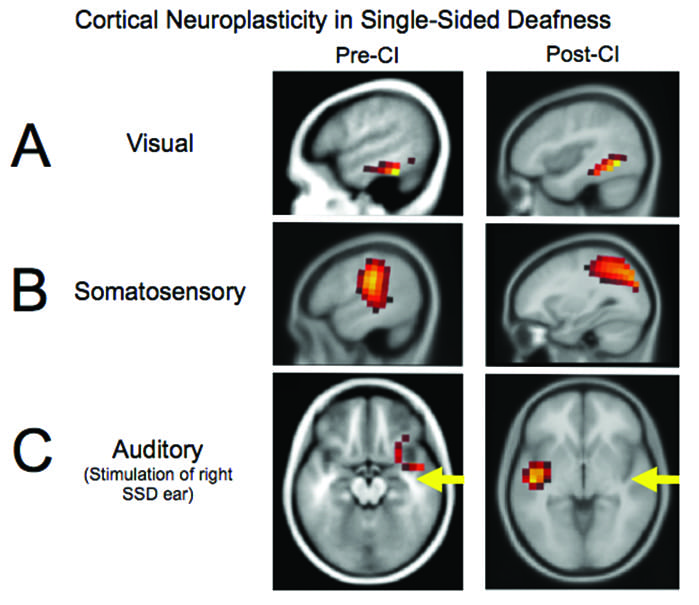 Cortical Neuroplasticity in Hearing Loss: Why It Matters in Clinical Decision-Making for Children and Adults