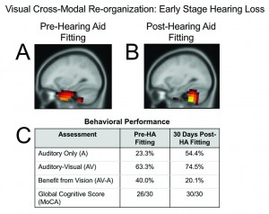 Figures 4a-c. Cross-modal recruitment by vision in mild-moderate bilateral sensorineural hearing loss before and several weeks after hearing-aid fitting. Panel A: Pre-hearing aid fitting, the adult shows recruitment of temporal (auditory) cortex for visual processing in addition to occipital (visual) cortical areas, suggestive of cross-modal reorganization by vision. Panel B: Within several weeks of hearing aid use, we see a reversal of cross-modal recruitment and expected activation of cerebellar/occipital areas to a visual motion stimulus. Panel C: Behavioral performance on an auditory/visual speech perception in noise test (AzAV) delivered as auditory-only and auditory-visual conditions, and a global cognitive function assessment (MoCA) administered pre-hearing aid fitting and post-hearing aid fitting. Within several weeks of hearing-aid fitting, this adult showed increased auditory-only performance in background noise, decreased functional reliance on visual cues for speech perception, and increased global cognitive function.