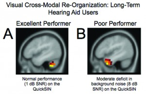 Figures 5a-b. Panel A: In response to the visual motion stimulus, the hearing aid user with excellent speech perception (1 dB SNR on the QuickSIN) shows activation restricted to occipital/cerebellar (visual) regions. Panel B: The hearing aid user with poor speech perception in noise (8 dB SNR on QuickSIN) shows activation in temporal (auditory) cortical regions, suggestive of cross-modal reorganization by vision. Adapted from Glick & Sharma (2017).39