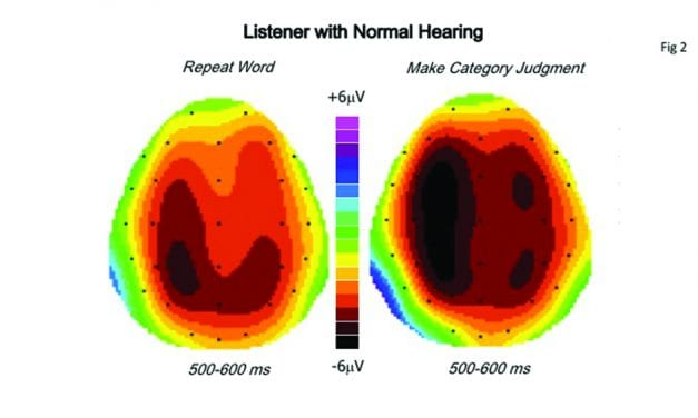 Clinical Speech Audiometry in the Age of the AERP