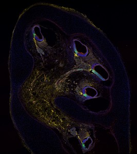 """Human cochlea at 10 weeks of development immunostained for markers to identify hair cell progenitors: """"CD271"""" in yellow, """"p27"""" in green. © Marta Roccio and Michael Perny, Inner Ear Research Laboratory, Department for BioMedical Research (DBMR), University of Bern."""