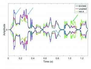 Figure 2. Comparison of the temporal envelopes among the unaided (red curve), EVOKE (blue curve), and HA#A (green curve) with the ISTS signal presented at 80 dB SPL in quiet. The blue and green arrows highlight the difference between the EVOKE, HA# A, and the unaided condition respectively.