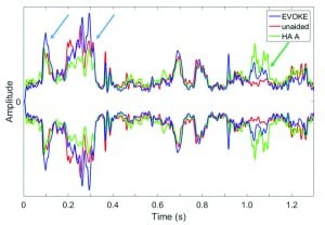 Figure 3. Comparison of the temporal envelopes among the unaided (red curve), EVOKE (blue curve), and HA#A (green curve) with the ISTS signal presented from the front at 80 dB SPL and a continuous noise also presented from the front at a SNR of +10. The blue and green arrows highlight the difference between the EVOKE, HA# A, and the unaided condition respectively.