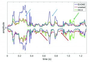 Figure 4. Comparison of the temporal envelopes among the unaided (red curve), EVOKE (blue curve), and HA#A (green curve) with the ISTS signal presented from the front at 80 dB SPL and a continuous noise presented from the back at a SNR = +10. The blue and green arrows highlight the difference between the EVOKE, HA#A, and the unaided condition respectively. The red arrows highlight the difference between the unaided and the other two HA conditions during speech pauses.