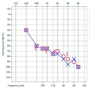 Figure 1. The author's audiogram.