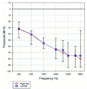 Figure 1. Average air conduction thresholds from the six participants in this study. Ranges are shown by error bars.