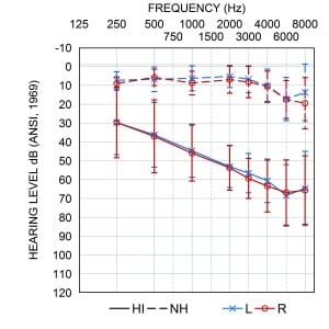 Figure 2. Average audiograms of hearing-impaired (solid lines) and normal hearing listeners (dashed lines) tested in the current study. Error bars represent ±1 SD of the mean.